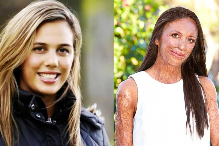 Bush fire victim ex-model Turia Pitt