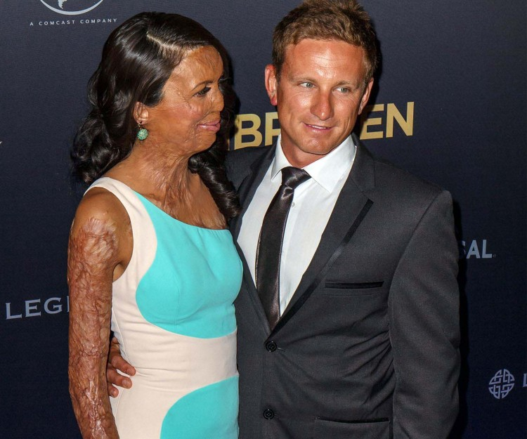 turia pitt and michael hoskins love story